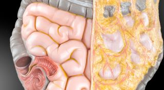How To Prevent Colon Cancer Consumer Reports