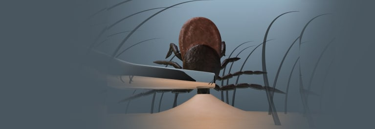 An illustration of how to remove a tick