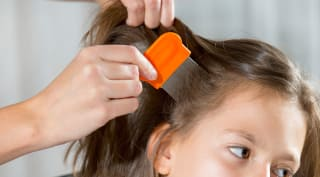 The Most Effective Way To Treat Head Lice Consumer Reports