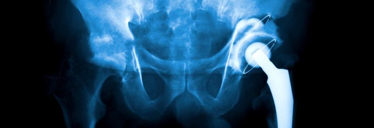 X-ray after having hip replaced