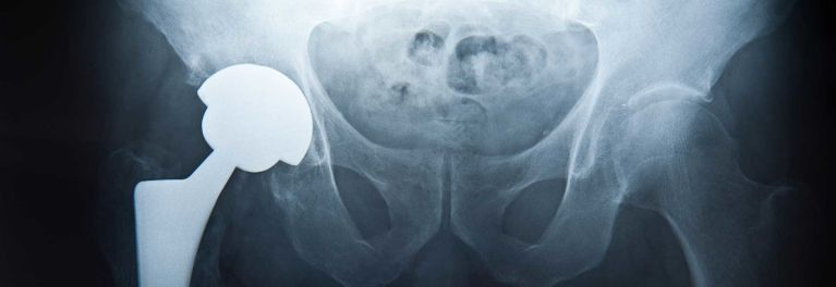 A new hip-replacement lawsuit has big implications for people with artificial joints.