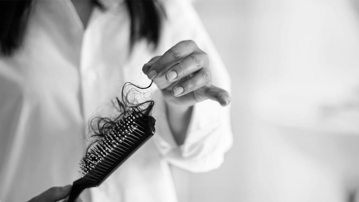 Hair in a hairbrush for an article on hair loss cures.