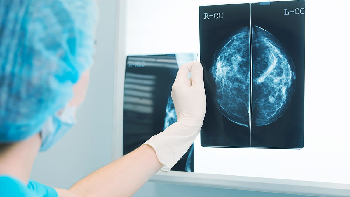 A medical provider views the result of a breast cancer screening test.