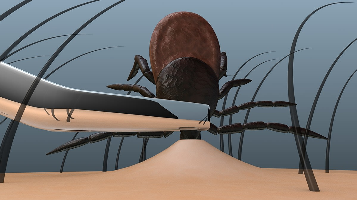An illustration of a tick being removed using tweezers.