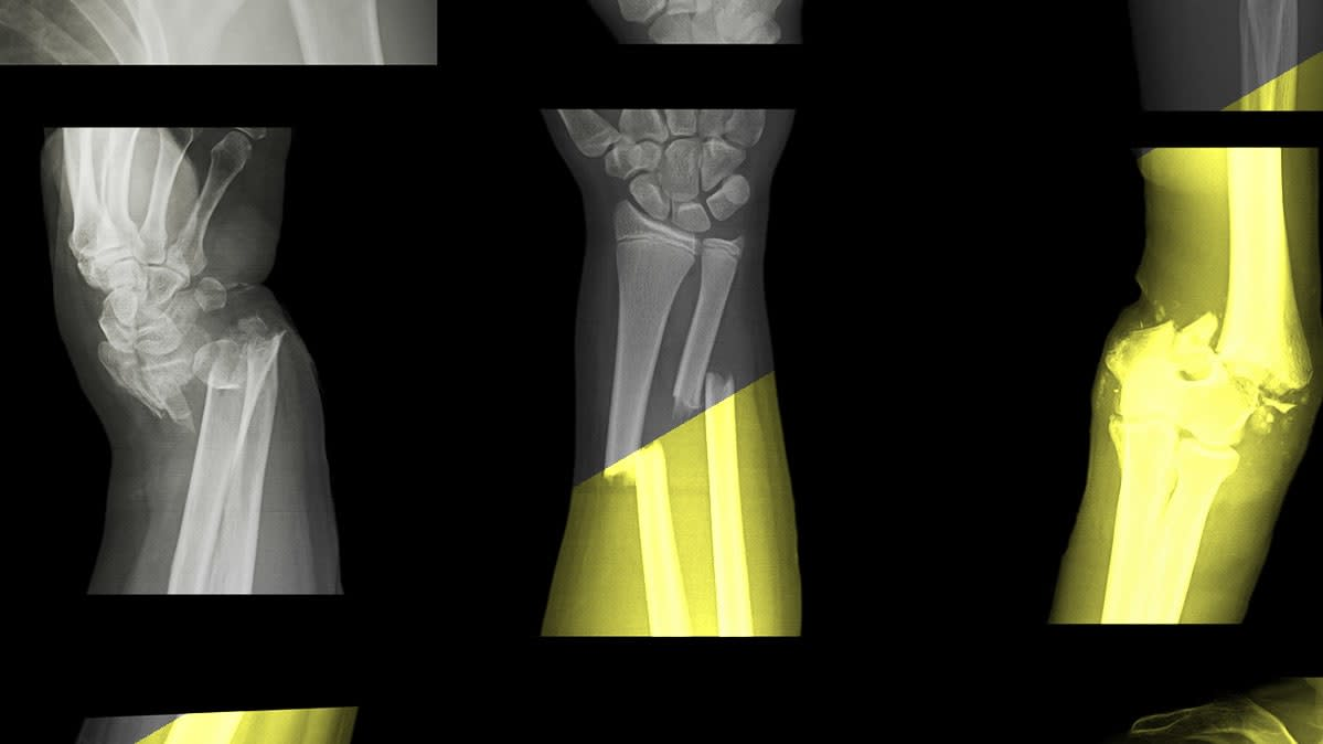 An X-ray image of a broken bone.