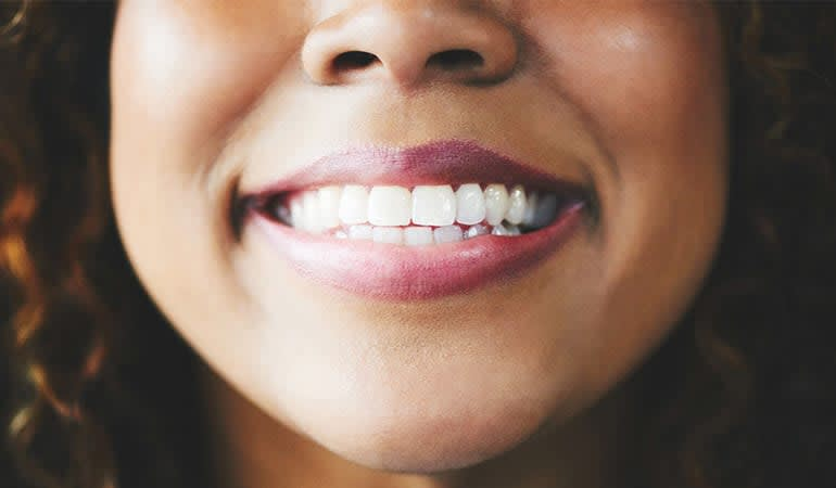 A woman with very nice white teeth.