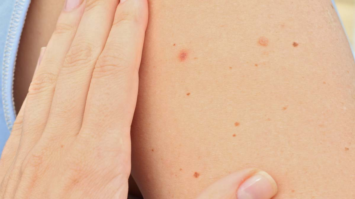How to spot skin cancer? Check your moles for changes monthly.