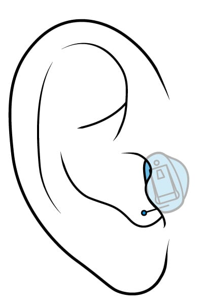 Illustration of a completely-in-the-canal hearing aid.