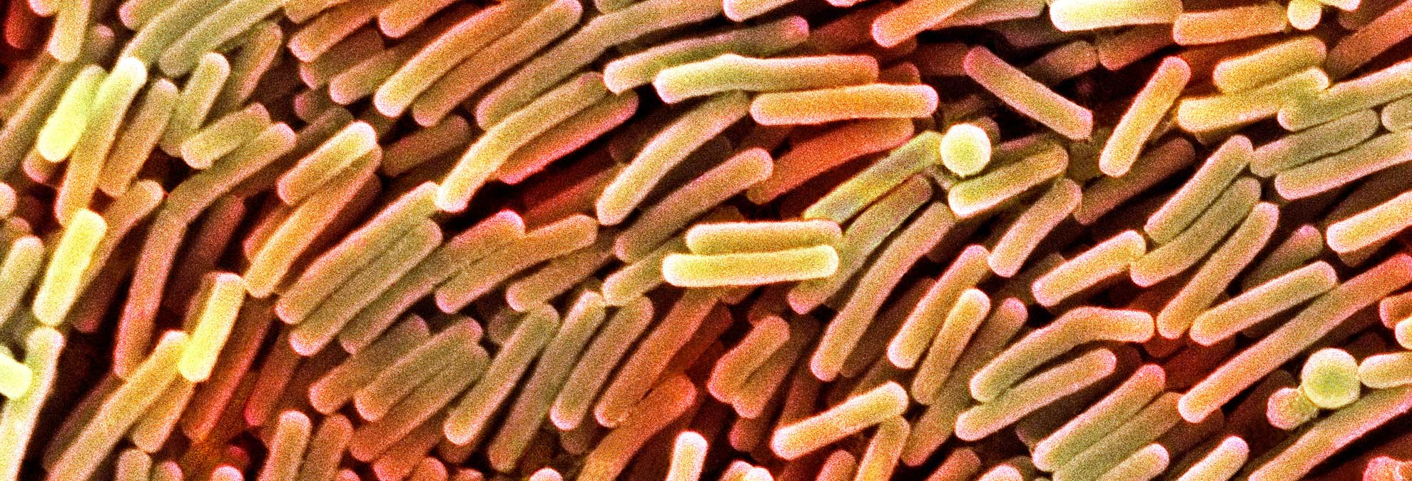 C  Diff: Deadly Infection on the Rise - Consumer Reports