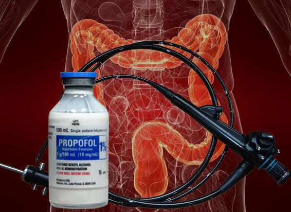 Deep Sedation for Colonoscopy Might Not Be Safe - Consumer