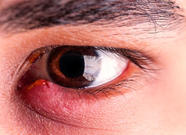 how to treat a stye under the eyelid