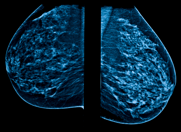 Can Radiation From Mammograms Cause Breast Cancer Consumer Reports