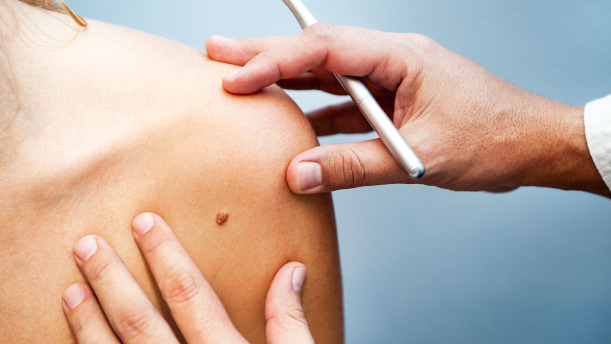 Making Sense of Skin Spots