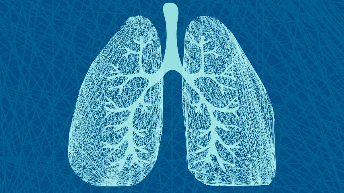 Should You Have A Lung Cancer Screening Consumer Reports