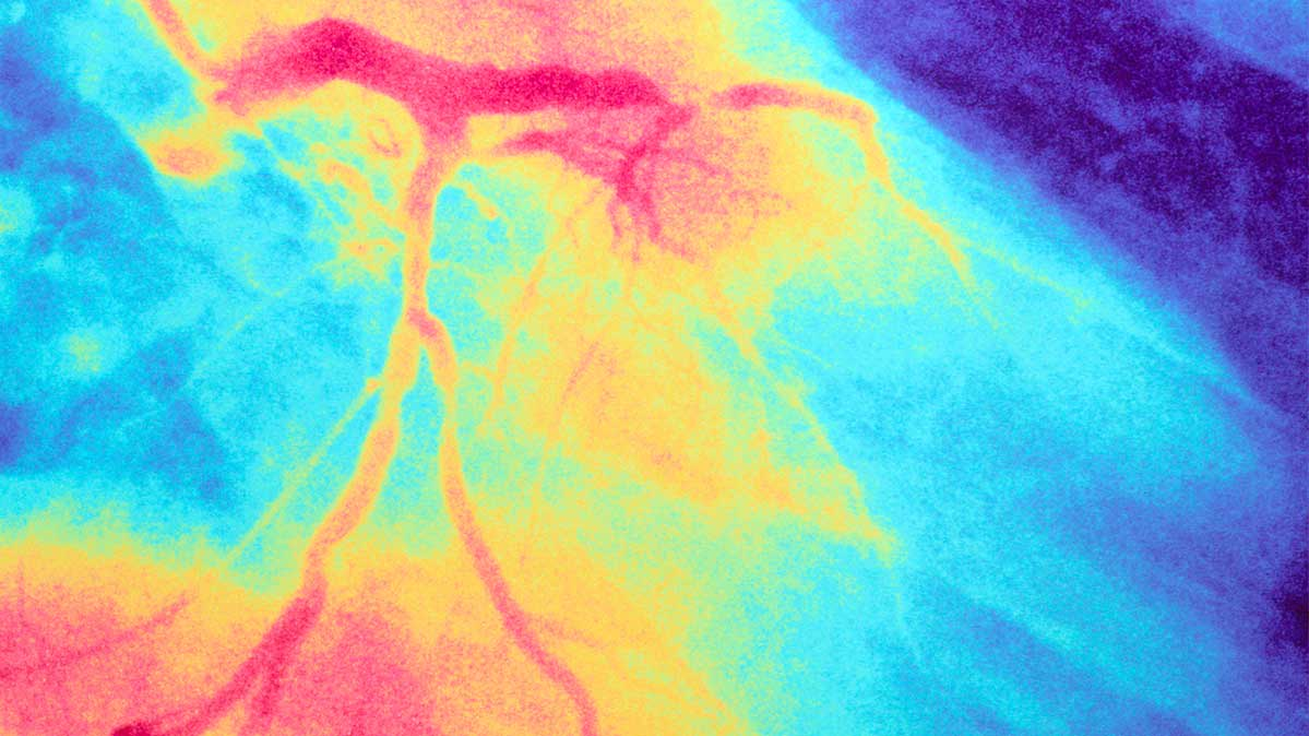 Colorful illustration of arteries near the heart