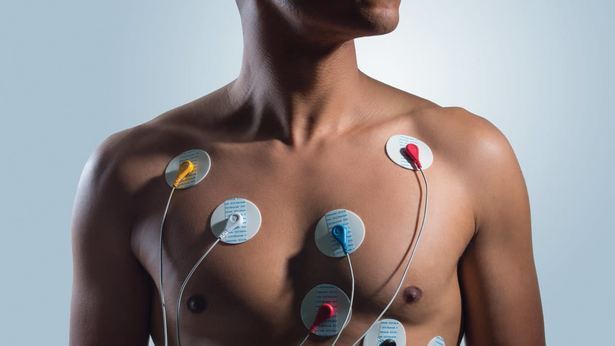 A bare-chested man with EKG leads attached to his chest