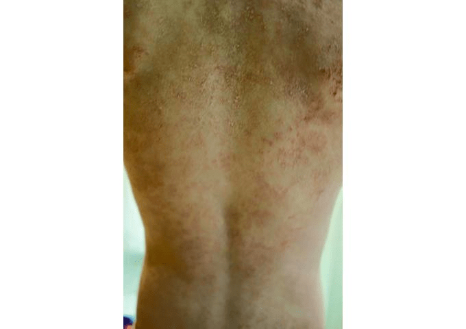 There's A Preservative That Can Give You An Awful, Itchy