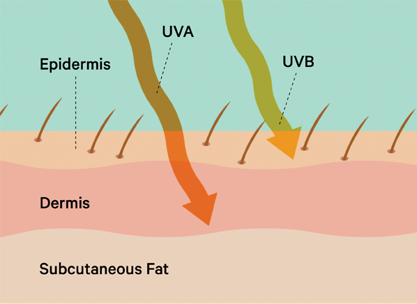 how to tell if you have uva damage