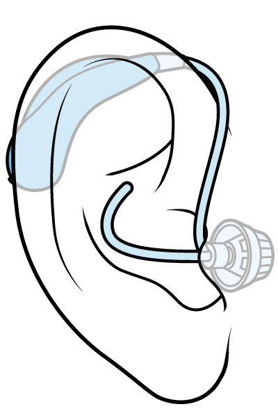 Illustration of a behind-the-ear hearing aid.