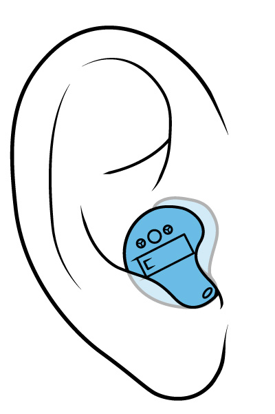 Illustration of an in-the-canal hearing aid.
