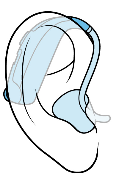 Illustration of a standard-tube behind-the-ear hearing aid.