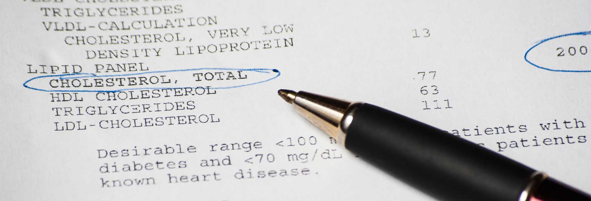 how to read cholesterol test results