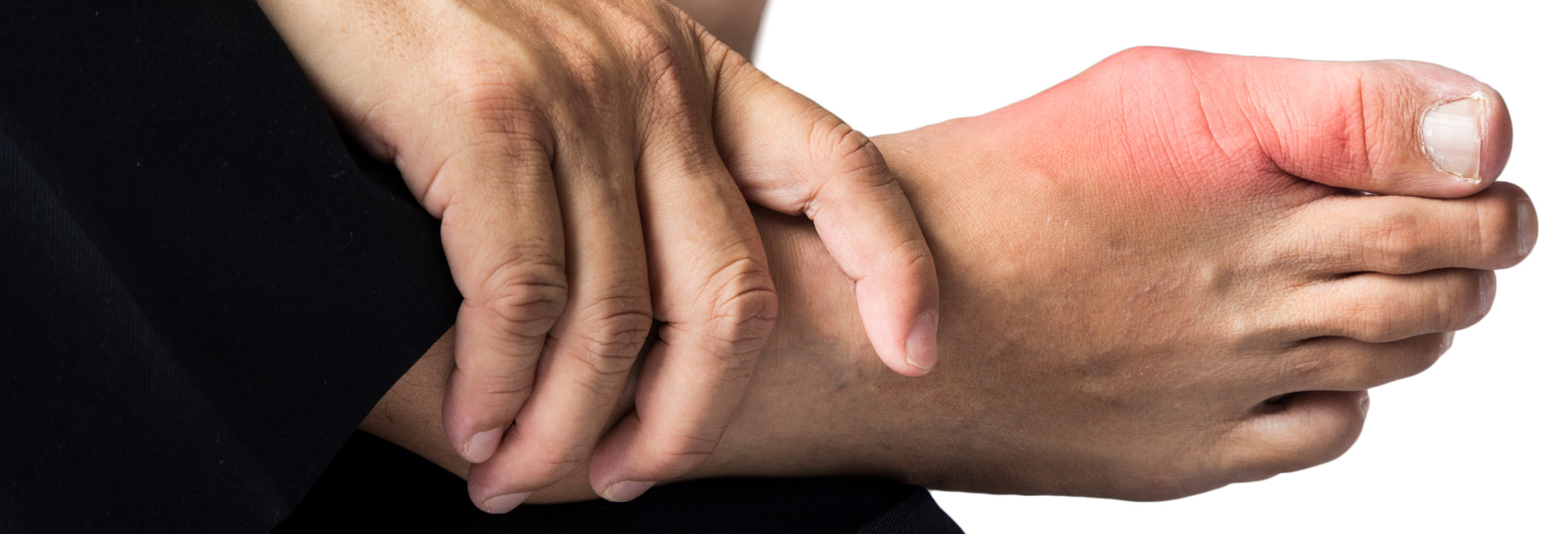 Gout Treatment Is Questioned in New Medical Guidelines