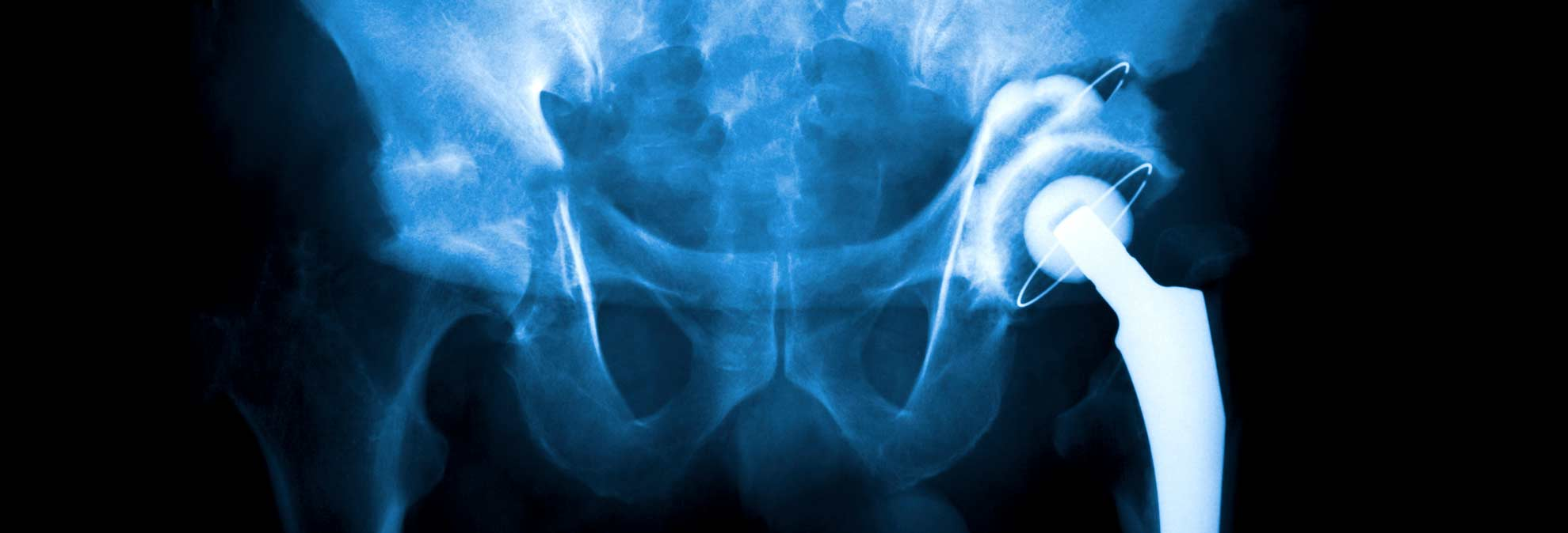 What To Do When Getting A Knee Or Hip Replaced Consumer