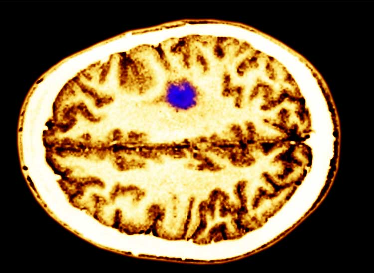 An image of a brain cancer tumor.