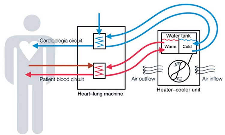Diagram showing how heater-cooler devices used during lung and heart surgery work.