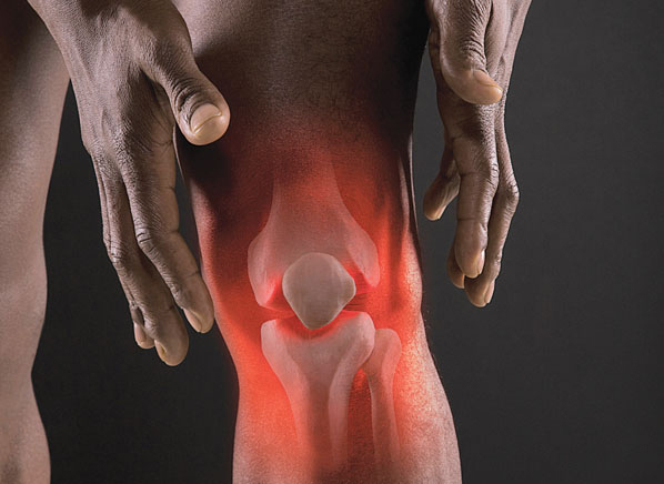 Pain Relief With Nsaid Medications Consumer Reports