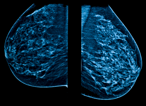 Can Radiation From Mammograms Cause Breast Cancer