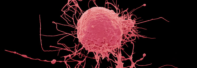 An image of a stem cell. Stem cell therapy is on the rise, but critics worry about its safety and effectiveness.